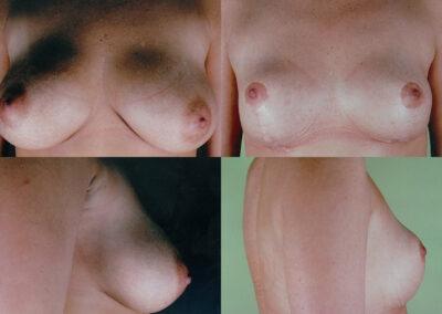 67 4 400x284 - Réduction mammaire