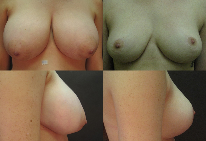 68 4 1 - Breast Reduction