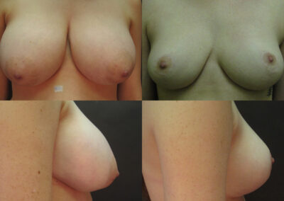 68 4 400x284 - Réduction mammaire