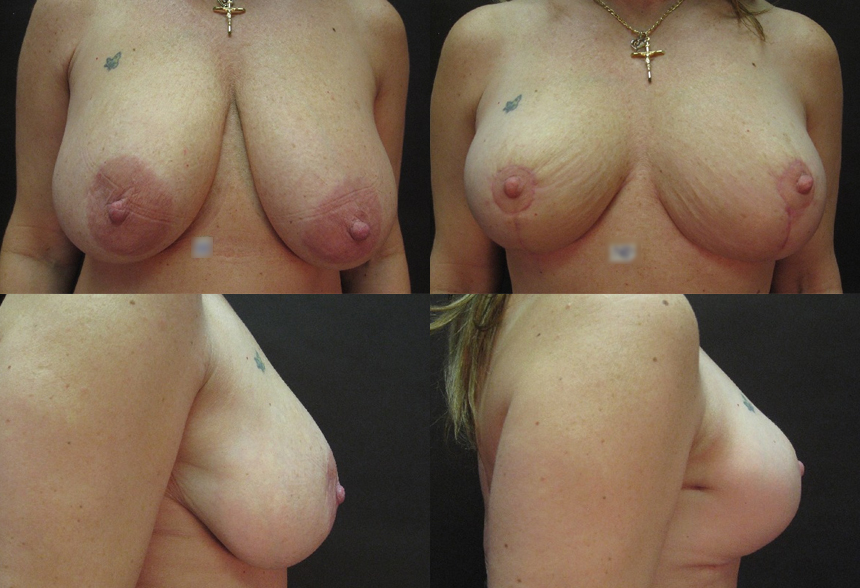 70 4 1 - Breast Reduction