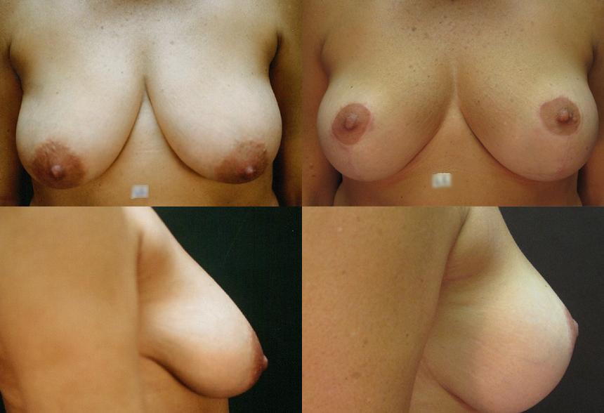 72 4 1 - Breast Lifting