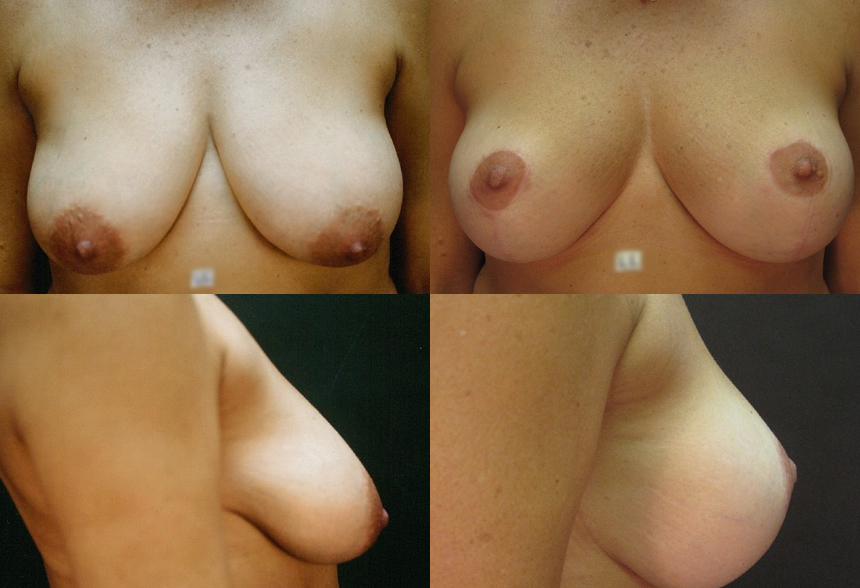 72 4 2 - Breast Reduction