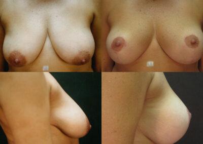 72 4 400x284 - Réduction mammaire