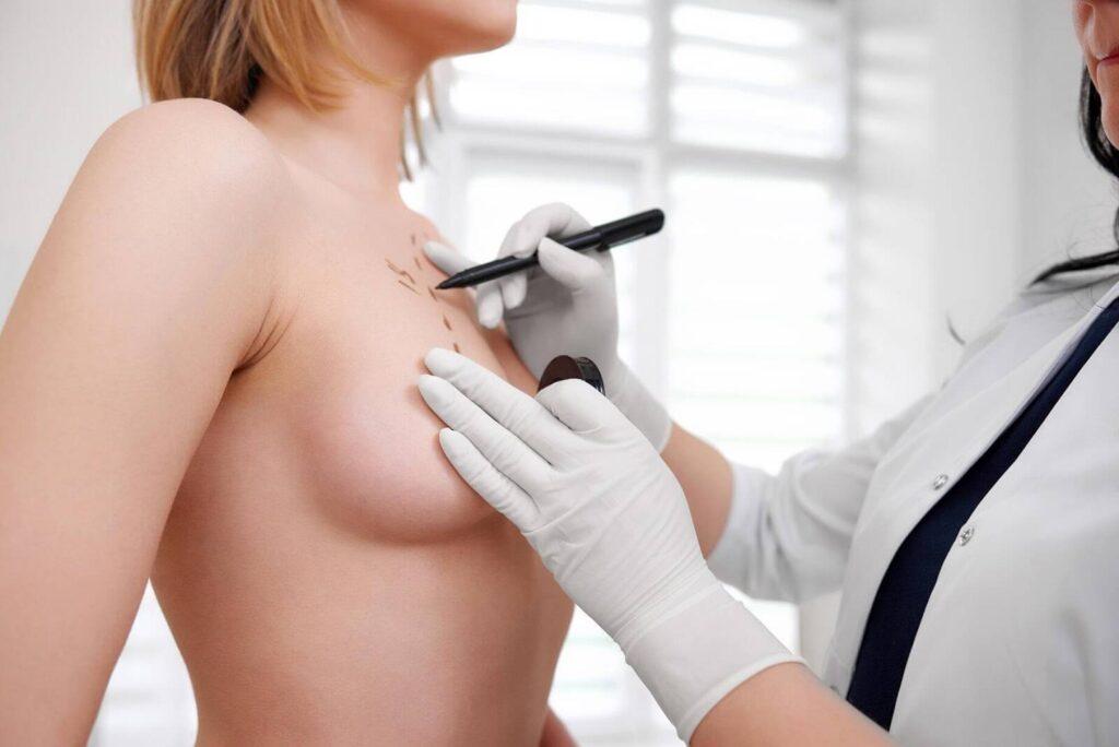 laugmentation mammaire 1024x684 - Blogue