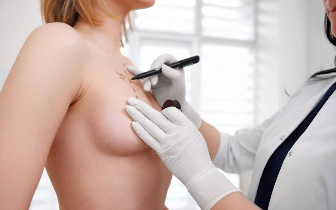 How much does breast augmentation cost in Quebec?